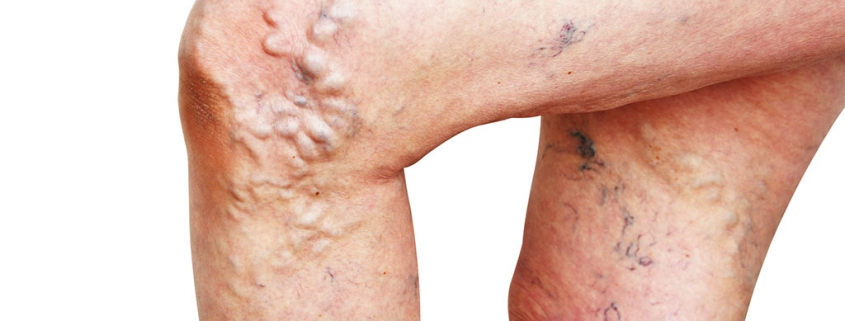 κιρσοί veincenter