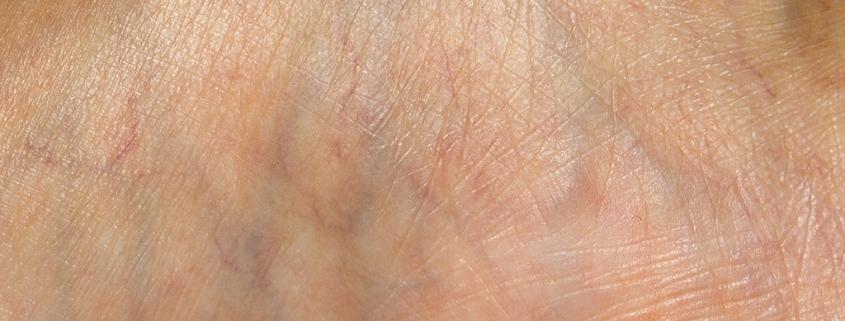φλεβίτιδα veincenter
